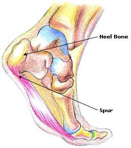 Heel Bone Spur Pain