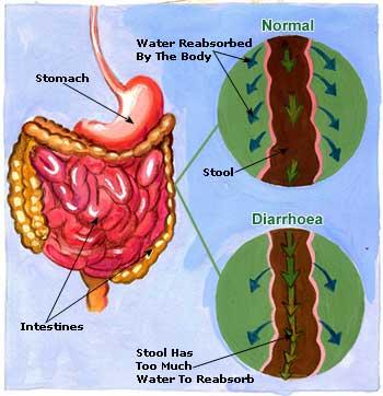 Home Remedies For Diarrhoea Treatments Symptoms Causes