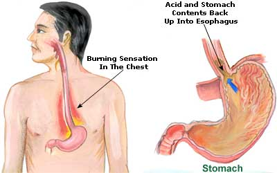Hyperacidity and Heartburn Picture