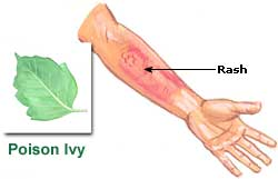 Relief From Poison Ivy Home Remedies