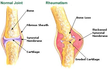 As a result, there are different types of rheumatism depending on what ...