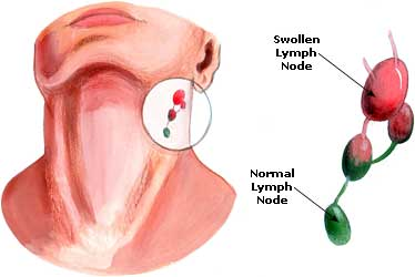 Sore Throat Swollen Lymph Nodes