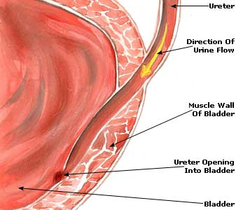Urinary Tract Infection Picture