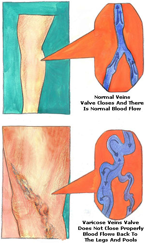 Relieve a enlarged vein on anus