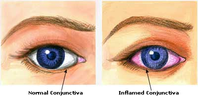 Red Eye Conjunctivitis Home Remedies