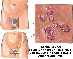 Pictures of anal rectal warts #3