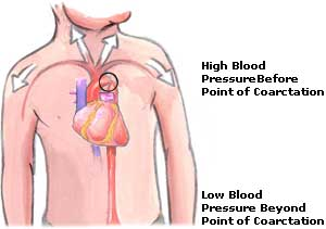 Low Blood Pressure  Picture