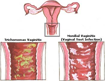 Do yeast infections cure on their own